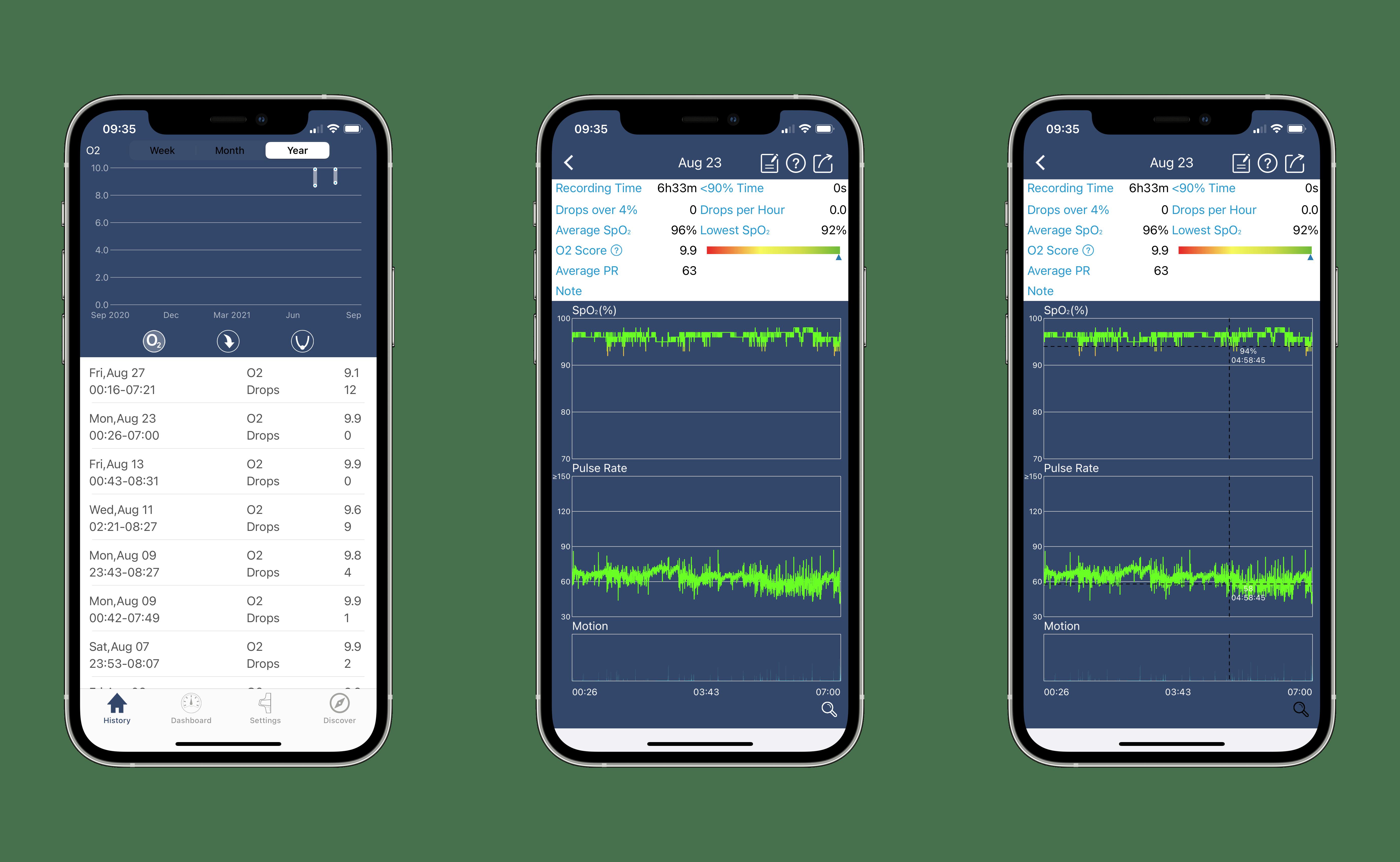 O2Ring Mobile App